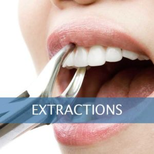 tooth extraction leominster