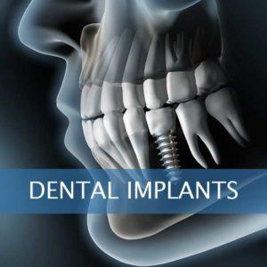Dental Implants leominster