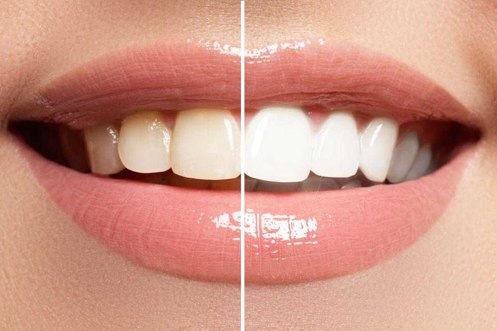 teeth whitening leominster