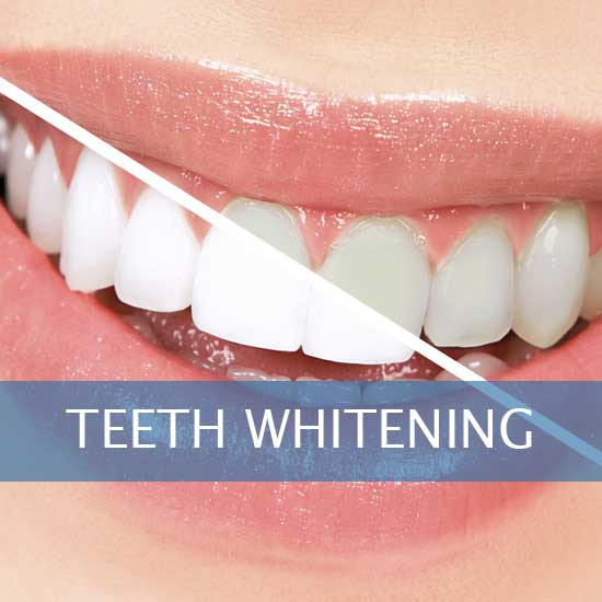 KöR Teeth Whitening